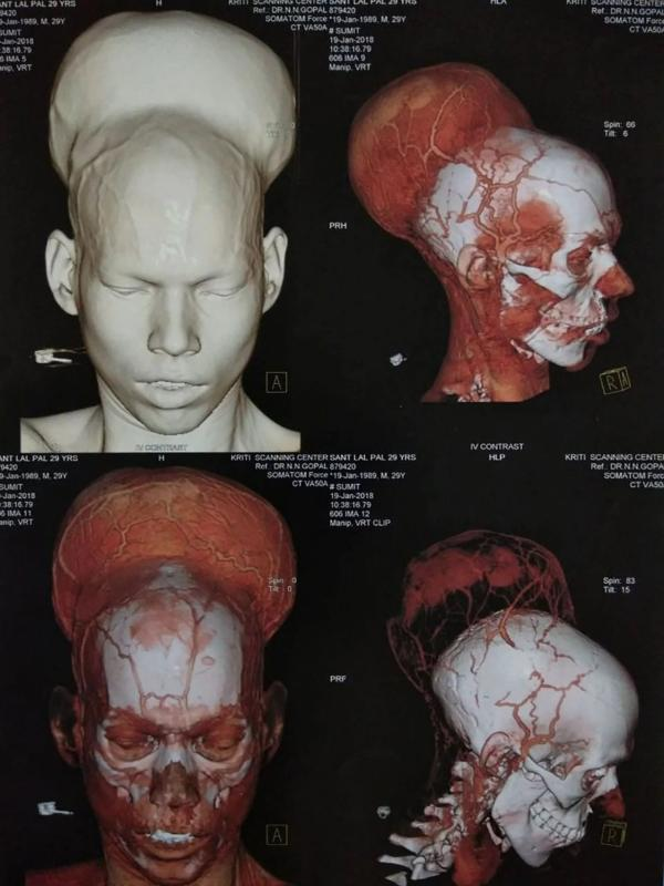 Digital imaging of Pal's brain tumour. Photo credit: Department of Neurosurgery Topiwala National Medical College, Nair Hospital/The Washington Post