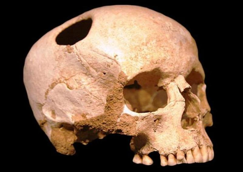 A 7,000-year-old Neolithic trepanned skull found in Northern Africa, where the patient did not survive the procedure. Photo credit: Ancient Origins