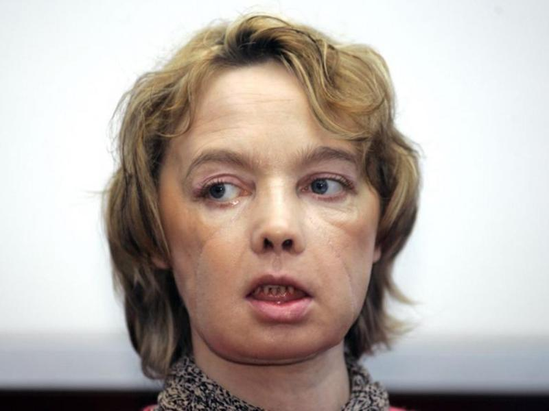 Isabelle Dinoire, made international headlines after undergoing the landmark operation in 2005 – becoming the first-ever face transplant recipient. Isabella passed away in 2016. Photo credit: The Independent