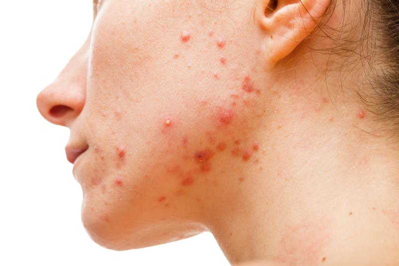 Patients with newly diagnosed acne were found to be at an increased risk of developing clinical depression compared to the general population.