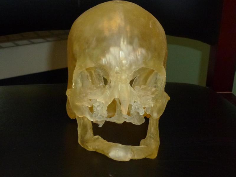 A 3D-printed face replica that was used in surgical planning of a face transplant. Credit: RSNA/Live Science